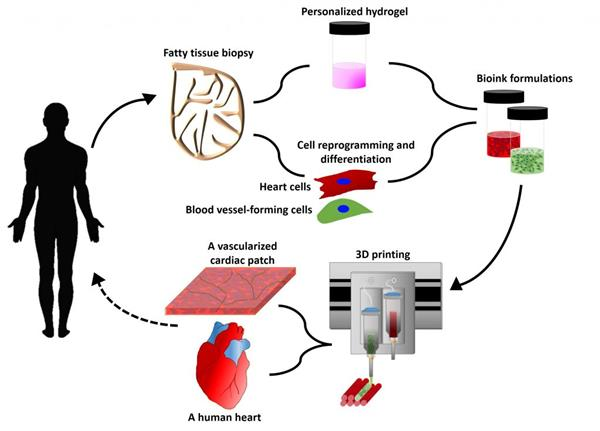 Procedure of 3D bio-printing heart